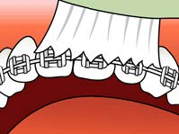 brushing-and-flossing-ortho_1