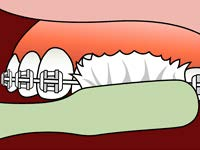 brushing-and-flossing-ortho_2