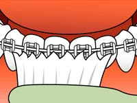 brushing-and-flossing-ortho_4