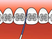 brushing-and-flossing-ortho_5