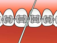 brushing-and-flossing-ortho_6