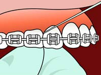 brushing-and-flossing-ortho_7