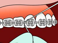 brushing-and-flossing-ortho_8