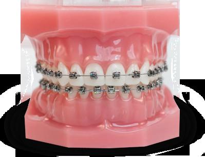 Damon Q Teeth